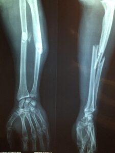 Workers' compensation claim xray